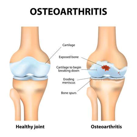 Choroba zwyrodnieniowa stawów. Zapalenie stawów lub ból w obrębie stawu. choroba zwyrodnieniowa stawów. Chrząstka staje się zużyte. Powoduje to zapalenie, obrzęk, i ból w złączu.
