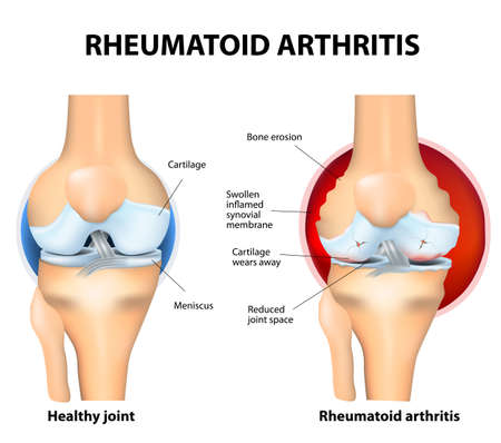 Rheumatoid Arthritis (RA) is an inflammatory type of arthritis that usually affects knees. Rheumatoid arthritis of the knee the auto immune disease. The bodys immune system mistakenly attacks healthy tissue. Vector