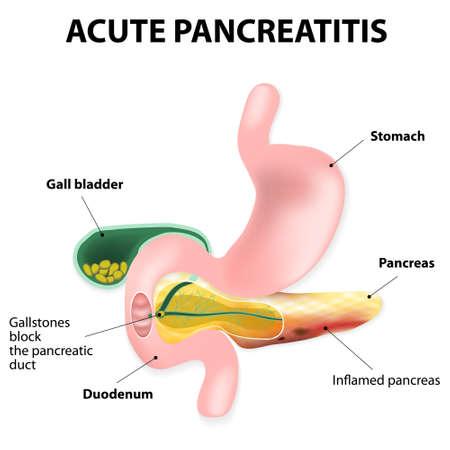 Acute pancreatitis is an inflammation of the pancreas.