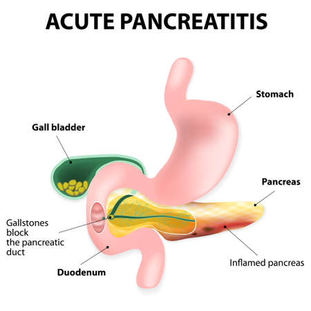 duodenum: Acute pancreatitis is an inflammation of the pancreas.