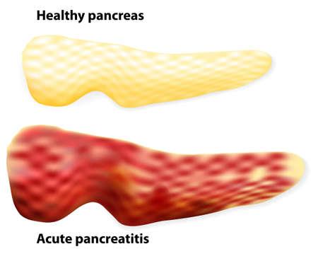 sistema digestivo: Las diferencias entre páncreas sano y el páncreas inflamado (pancreatitis).