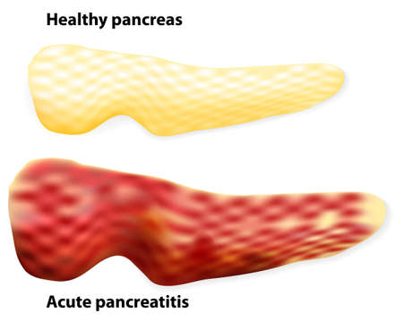 glucagon: The differences between healthy pancreas and inflamed pancreas (pancreatitis). Illustration