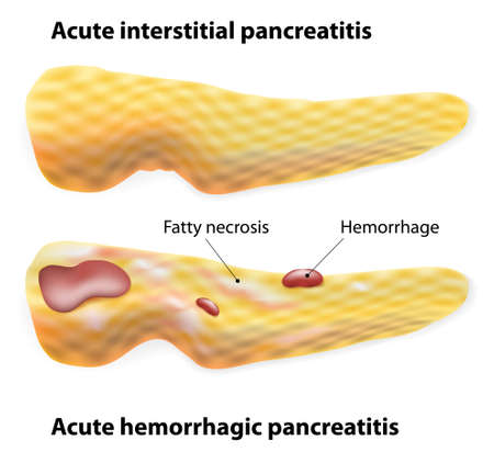 necrosis: Acute Pancreatitis. Acute interstitial pancreatitis and acute hemorrhagic pancreatitis. Illustration