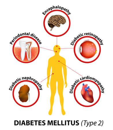 Diabetes mellitus type 2. aangetaste organen. Onbehandeld, diabetes kan veel complicaties veroorzaken. Ernstige langdurige complicaties zijn hartziekte en cardiomyopathie, beroerte en encefalopathie, nefropathie en nierfalen, periodontale ziekte, retinopa Stock Illustratie