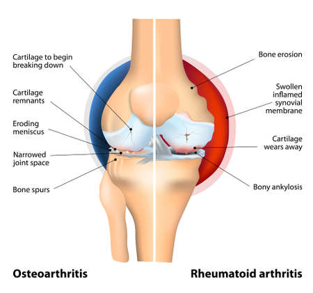 Comparison of Osteoarthritis and Rheumatoid Arthritis. RA is caused by the body immune system mistakenly attacking the joints causing inflammation. OA is a progressive degenerative joint disease characterized by the breakdown of joint cartilage associated Vector