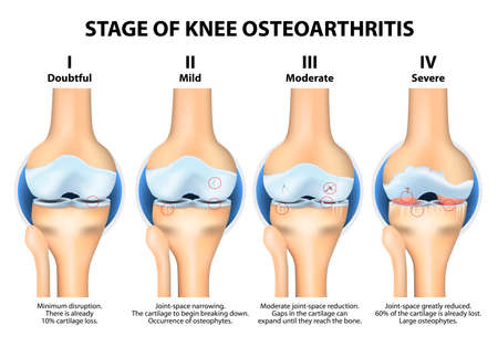 osteoarthritis: Stages of knee Osteoarthritis (OA). Kellgren and Lawrence criteria for assessment stage of osteoarthritis. The classifications are based on osteophyte formation and joint space narrowing.