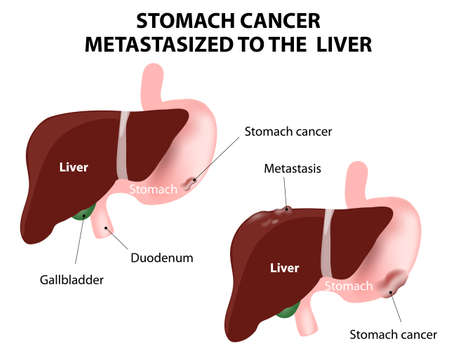 Stomach cancer Metastasized to the  liver. The spread of a cancer from one organ to another. Mets. Vector