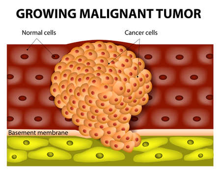 Cancer cells in a growing malignant tumor. malignant neoplasm. metastasis Vector