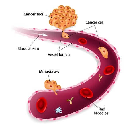 Cancer cell squeezes through blood vessel during Metastases Vector