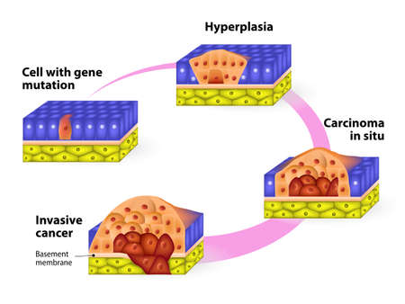 virus cell: Cancer. Cancer cells in a growing tumor. Stages of carcinogenesis
