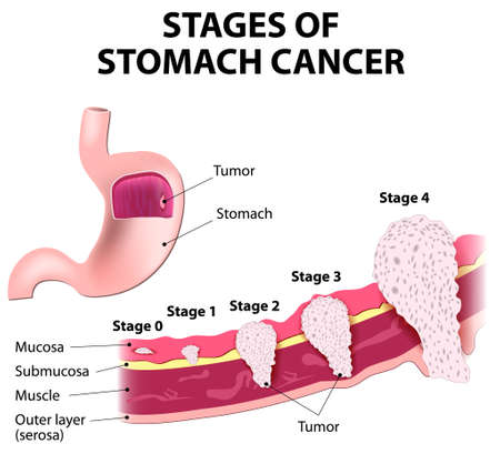 The clinical stages of stomach cancer. Classification of Malignant Tumours Stock Illustratie