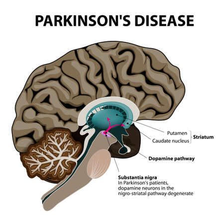 Parkinsons Disease. Cross-section of the human brain showing the substantia nigra, the region affected by Parkinsons disease. Illustration shows Neuronal Pathways that Degenerate in Parkinsons Disease. Vector