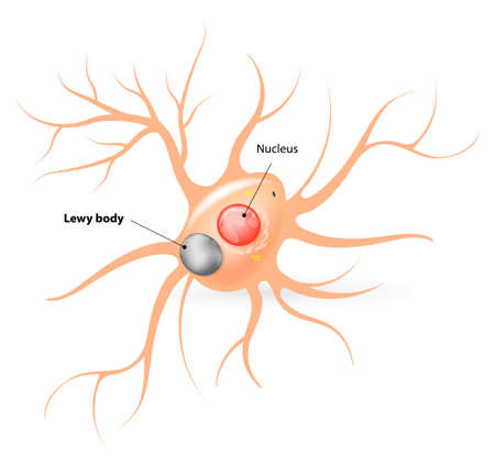 neuron cell body: Parkinsons disease and Alzheimers disease. large black sphere inside the body of a neuron, a Lewy Body confirms the diagnosis of parkinsonism.