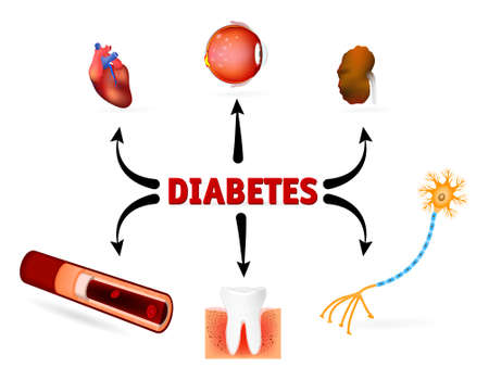Complications of diabetes mellitus. diabetes complications such as blindness, heart disease, kidney failure, High Blood Pressure and other. Vector