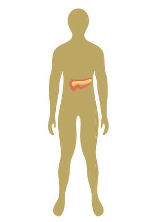 pancreas: Cifras silueta humana con p�ncreas internos. Ilustraci�n del vector con el p�ncreas resaltados.