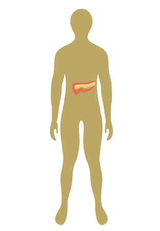 hyperglycemia: Human silhouette figures with internal pancreas. Vector illustration with highlighted pancreas.