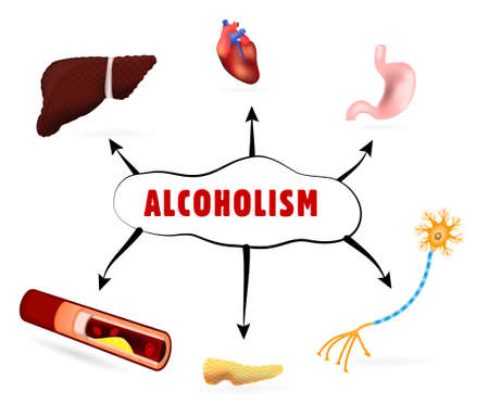 How Alcoholism and Alcohol Abuse Affect human Body Vector