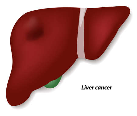 Liver cancer or hepatic cancer. Human anatomy Illustration