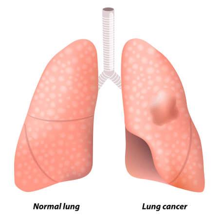 maligno: c�ncer de pulm�n. Esta ilustraci�n muestra un tumor maligno en el l�bulo superior del pulm�n izquierdo de la persona. Anatom�a humana
