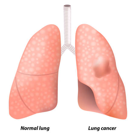 mutations: lung cancer. This illustration shows malignant tumor in the upper lobe of the persons left lung. Human anatomy