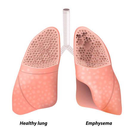 medical person: Emphysema. Chronic obstructive pulmonary disease. diagram showing a cross-section of normal lung and lungs damaged by COPD. Human anatomy