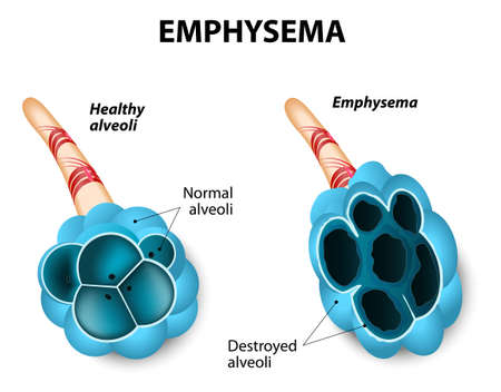 bronchioles: Emphysema. Damage to the air sacs in lungs. Chronic Obstructive Pulmonary Disease.