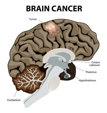brain cancer: A brain tumor is an abnormal growth of tissue in the brain. Human anatomy