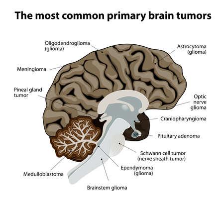hipofisis: diferentes tipos de tumores cerebrales.