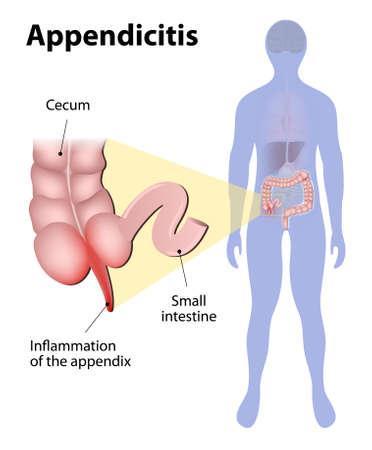 intestino grueso: La apendicitis es una inflamación del apéndice. Intestino grueso y el apéndice resaltados en la silueta de un ser humano. ilustración médica
