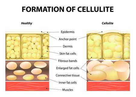 mujer celulitis: formación de la celulitis.