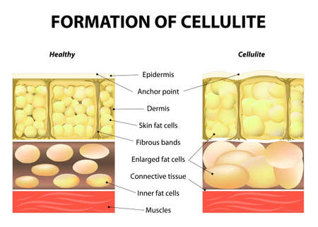cellulite: forming of cellulite.