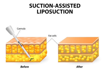 cellulite: Mechanism of liposuction. Suction-assisted liposuction. hollow tube (cannula) which is inserted through a small incision in the skin  in order to fat suctioned out of the body