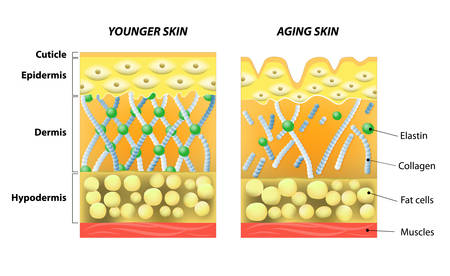 wrinkly: younger skin and aging skin. elastin and collagen. A diagram of younger skin and aging skin showing the decrease in collagen and broken elastin in older skin. Illustration