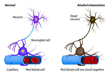 capillaries: nerve damage caused by heavy drinking. Alcohol being toxic to nerve cells. Alcohol dissolves the protective layer of erythrocytes and the red blood cells begin to adhere to each other. oxygen to the neuron is no longer supplied. Neuron dies Illustration