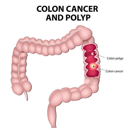 Colon cancer and colon polyps. Polyps have the potential to turn into cancer if they remain in the colon.  일러스트