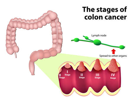 Colorectal Cancer. Stage of development of a malignant tumor (0 to 4). the system that is most commonly used for the staging process of colon cancer Vector