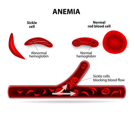 sickle: anemia. sickle cell and normal red blood cell