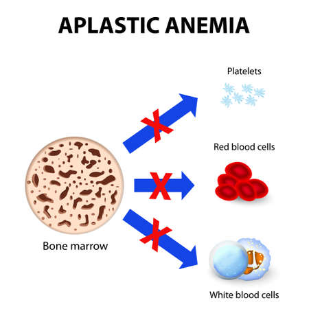 red blood cell: aplastic anemia. disease bone marrow Illustration