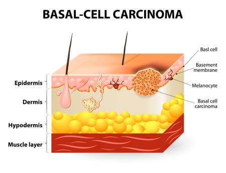 skin cancer. Basal-cell carcinoma or basal cell cancer (BCC). Schematic representation of skin. Melanocytes are also present and serve as the source cell for melanoma. The separation between epidermis and dermis occurs at the basement membrane zone. Vector