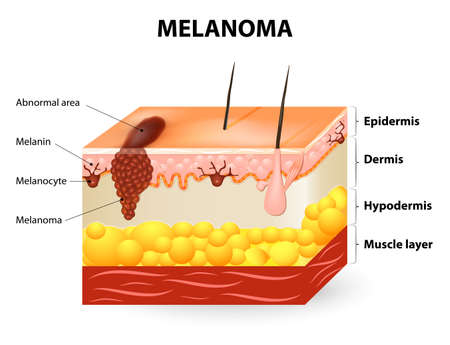 cancer: Melanoma or skin cancer. This rare type of skin cancer originates from melanocytes. layers of the human skin. Illustration