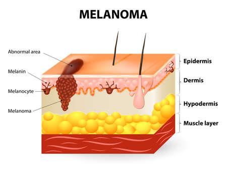 Melanomen of huidkanker. Deze zeldzame vorm van huidkanker is afkomstig van melanocyten. lagen van de menselijke huid.