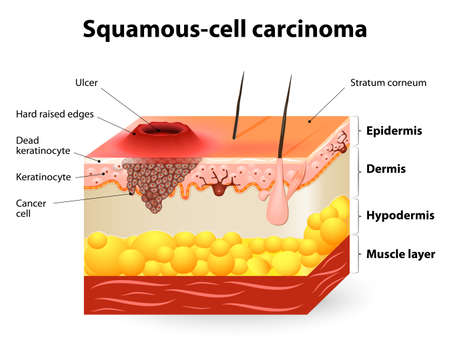 Squamous-cell carcinoma or squamous cell cancer. Illustration