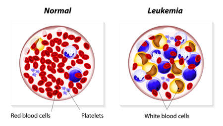 Leukemia is a type of cancer in the blood-forming tissues of the body. White blood cells produced in excessive amounts and are unable to work properly which weakens the immune system.  イラスト・ベクター素材
