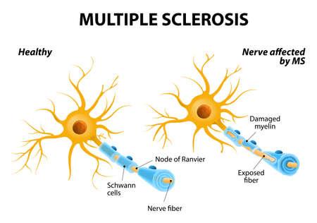 척수: 다발성 경화증 또는 MS. 자가 면역 질환. 뇌와 척수의 신경은 자신의 면역 시스템에 의해 손상 될 수 있습니다. 근육 제어, 비전과 균형의 손실의 결과. 일러스트