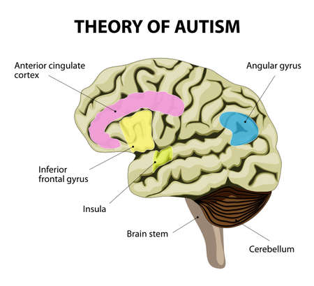 abnormalities: theory of autism. Human brain and Mirror neurons. illustration show specific abnormalities in the areas of the brain Illustration