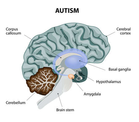 Brain anatomy with basal ganglia cortex brain stem cerebellum parts of the brain affected by autism vector diagram vector ccuart Gallery