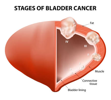 renal failure: cancer bladder. Diagram showing the stages of bladder cancer. Human anatomy