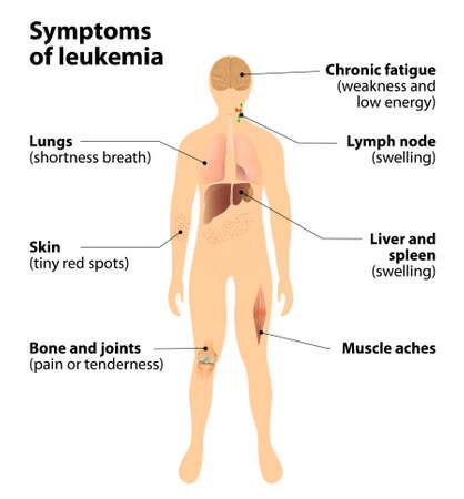 leucemia: Cómo reconocer los signos de leucemia. cáncer de la sangre