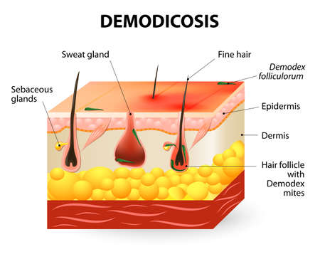 skin disease: demodicosis. Demodex mite also known as face mites. Demodex folliculorum is a type of skin mite that lives in hair follicles. Demodex to cause mange and other skin disease. parasitic mites affecting animals and humans. Illustration
