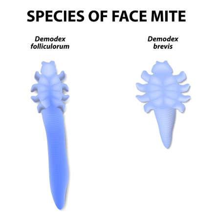 skin infections: especies de �caros cara. Demodex folliculorum y Demodex brevis. Demodex folliculorum vive en los fol�culos del pelo en la base de las pesta�as. Brevis Demodex vive en las gl�ndulas de aceite conectados a los fol�culos pilosos. Vectores